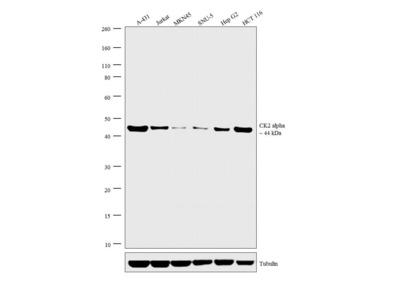 CK2 alpha Monoclonal Antibody (8E5)