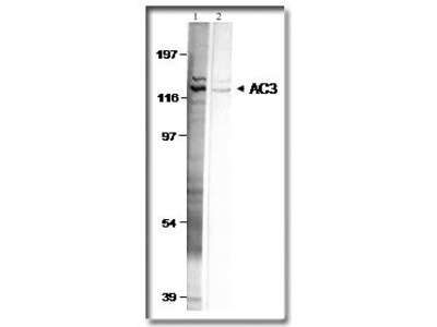 Adenylate Cyclase 3 Polyclonal Antibody