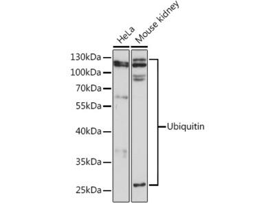 Anti-Ubiquitin B antibody
