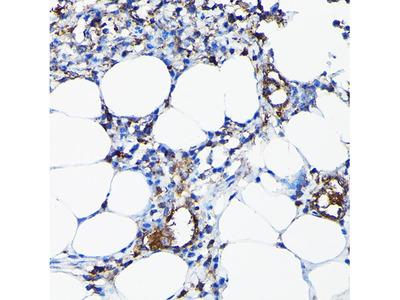 Anti-CYP1A1 antibody
