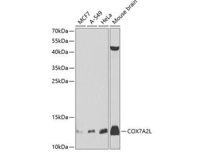 Anti-COX7A2L antibody