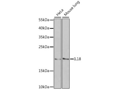 Anti-IL18 antibody