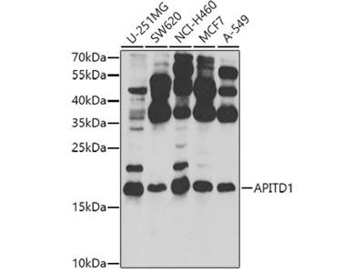 Anti-APITD1 antibody
