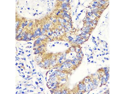 Anti-NRF2 antibody