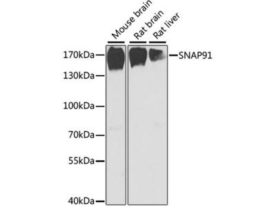 Anti-SNAP91 antibody