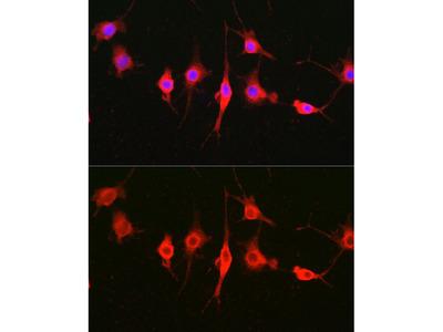 Anti-Heparanase 1 antibody