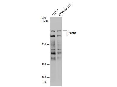Anti-Plectin antibody