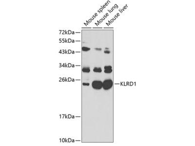 Anti-CD94 antibody