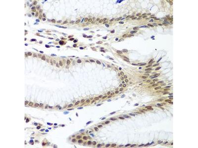 Anti-Securin antibody