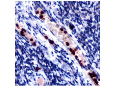 anti Myeloperoxidase