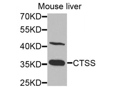 Cathepsin S (CTSS) Antibody