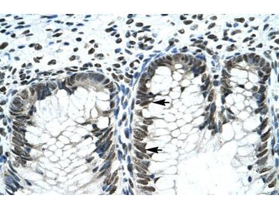 GLI2 Polyclonal Antibody