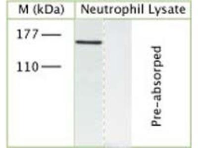TRPM7 Polyclonal Antibody