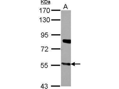 anti-CYP27A1 antibody