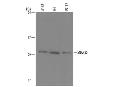 Human / Mouse / Rat SNAP25 Antibody