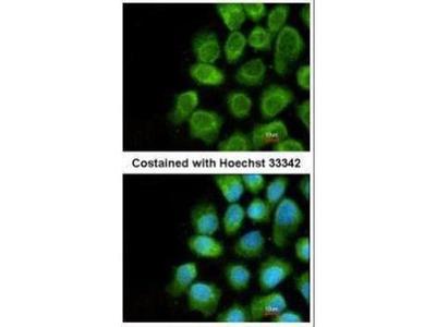 anti-CoVa antibody