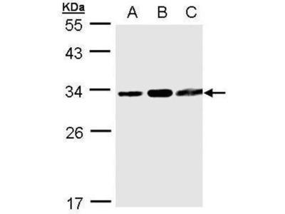 anti-TATDN1 antibody
