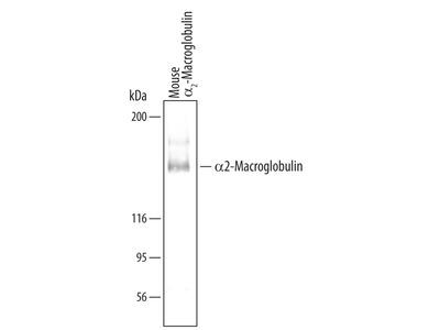 alpha 2-Macroglobulin Antibody