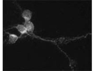 SNAP29 Polyclonal Antibody