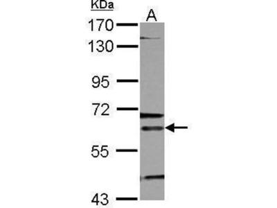 anti-ALAS2 antibody