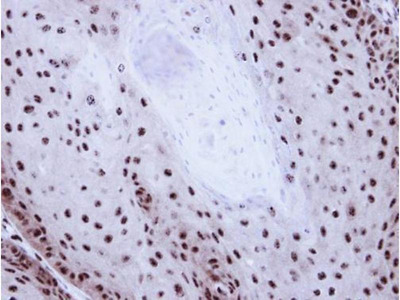 anti-GABPB1 antibody
