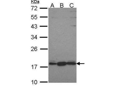 anti-Pleckstrin Homology Domain Containing, Family J Member 1 (PLEKHJ1) (C-Term) antibody