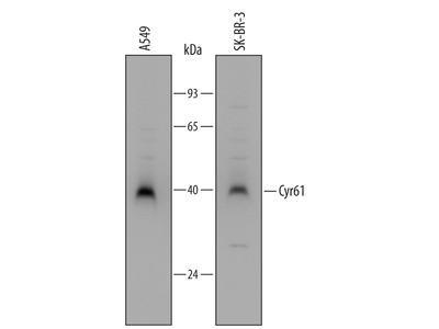 Human Cyr61 / CCN1 Antibody