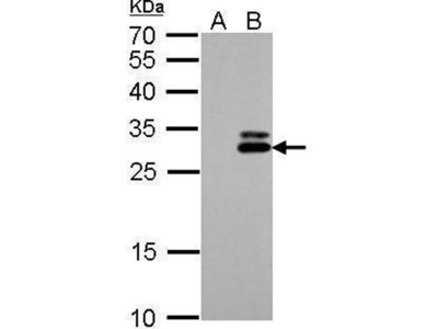 anti-KLK7 (Kallikrein 7) antibody