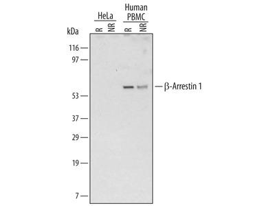 beta-Arrestin 1 Antibody