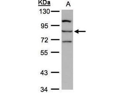 anti-ALOXE3 antibody