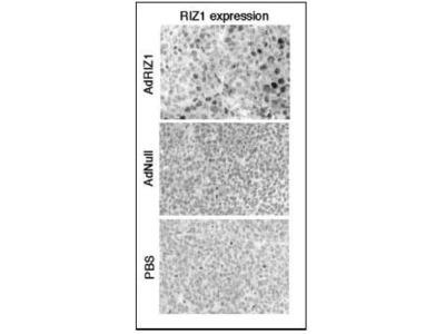 PRDM2 Polyclonal Antibody