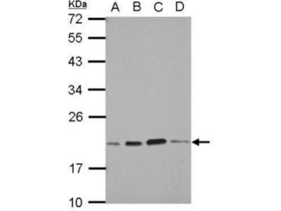 anti-S-Phase Kinase-Associated Protein 1 (SKP1) (Center) antibody