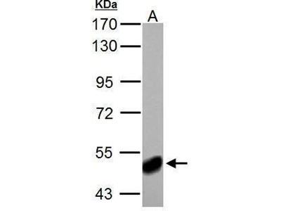 anti-ABAT antibody