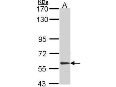 anti-GPC5 antibody