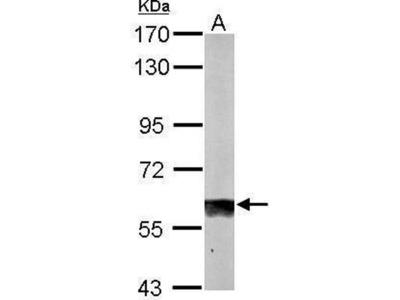 anti-sulfite oxidase (SOX) antibody