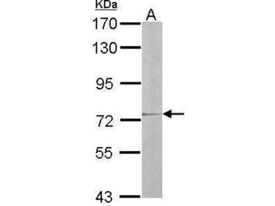 anti-IL17RD antibody