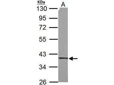 anti-Succinate-CoA Ligase, alpha Subunit (SUCLG1) (full length) antibody