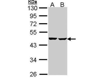 anti-SUCLA2 antibody