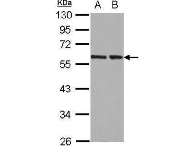 anti-RAD23 Homolog B (S. Cerevisiae) (RAD23B) (Center) antibody