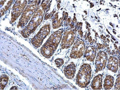 anti-Aldehyde Dehydrogenase 2 Family (Mitochondrial) (ALDH2) (Center) antibody