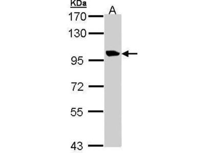 anti-TMEM67 antibody