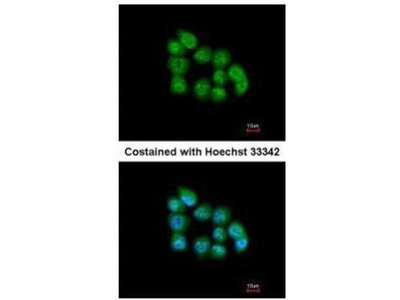 anti-MBNL3 antibody