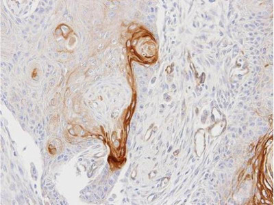 anti-ENTPD6 antibody