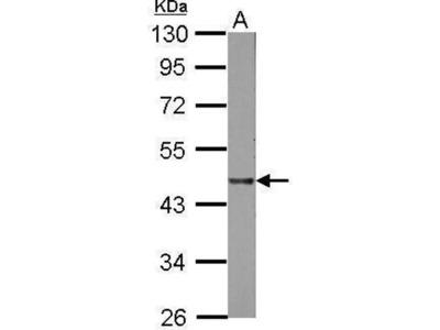 anti-LIPA (lysosomal acid lipase A) antibody