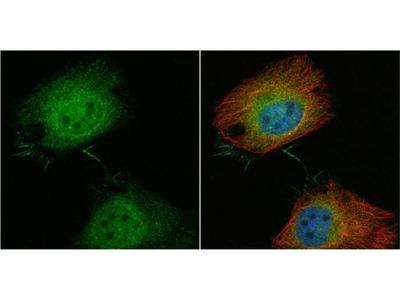 anti-plastin 3 (PLS3) antibody
