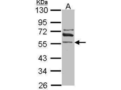 anti-Aldehyde Dehydrogenase 1 Family, Member A2 (ALDH1A2) (Center) antibody