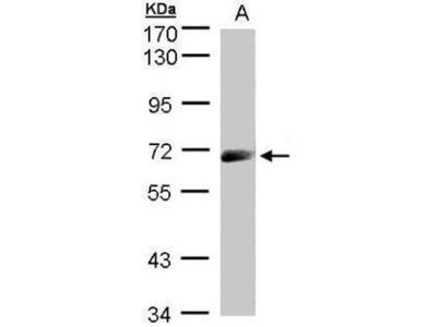 anti-IL12RB1 antibody