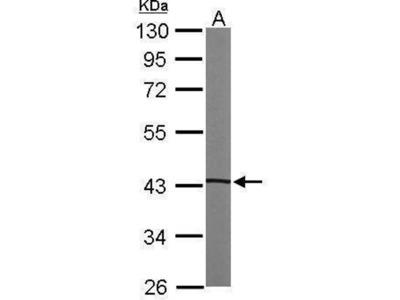 anti-PRKACA (PRKAR1B) antibody