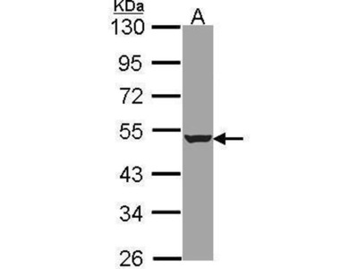 anti-Hydroxyacyl-CoA Dehydrogenase/3-Ketoacyl-CoA Thiolase/enoyl-CoA Hydratase (Trifunctional Protein), beta Subunit (HADHB) (N-Term) antibody