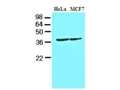Mouse Monoclonal Casein Kinase 1 alpha Antibody